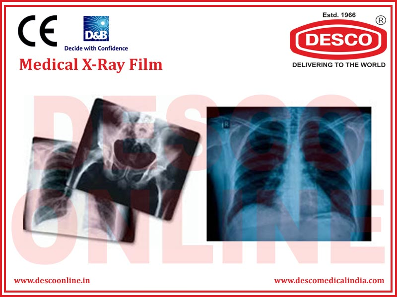 MEDICAL X-RAY FILM